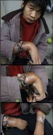 被村干部非法拘禁多年的27岁男子,在其母亲的帮助下,带着无法去除的手链铁镣逃到了张家界。目前,脚链已被消防战士打开,而手链因已嵌进了骨头而无法去除.jpg